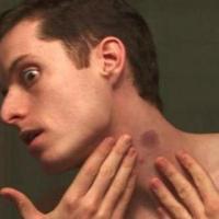 ΜΑΓΙΚΟ! Πώς θα σβήσεις τις πιπιλιές από το δέρμα σου;